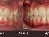 case-4