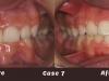 case-7