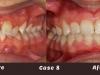 case-8